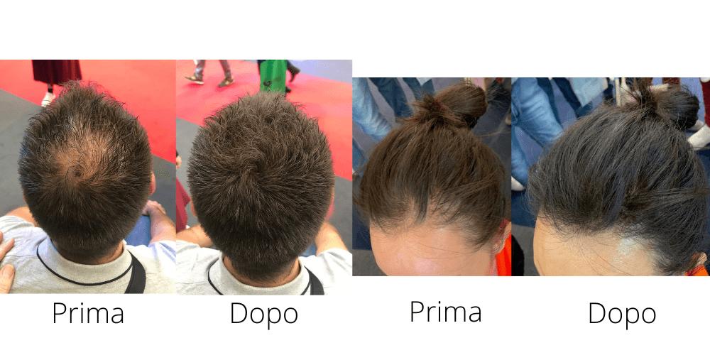 Toppik - prima e dopo fibre di cheratina