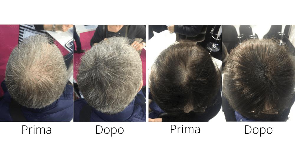 Toppik - prima e dopo Salustore